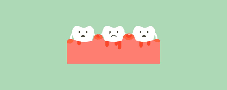 imagen diente sangrando