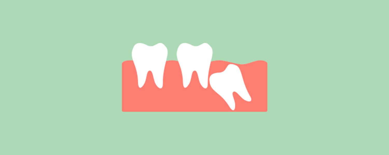 imagen diente