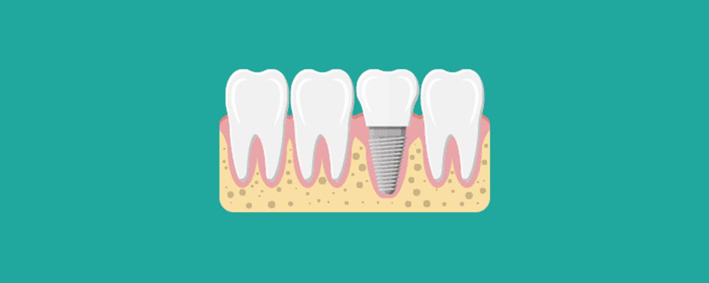imagen dientes