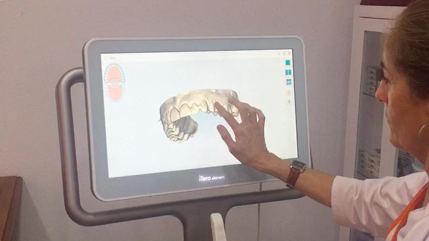 Estrenamos nuevo escáner intraoral para el diseño digital de la sonrisa de nuestros pacientes